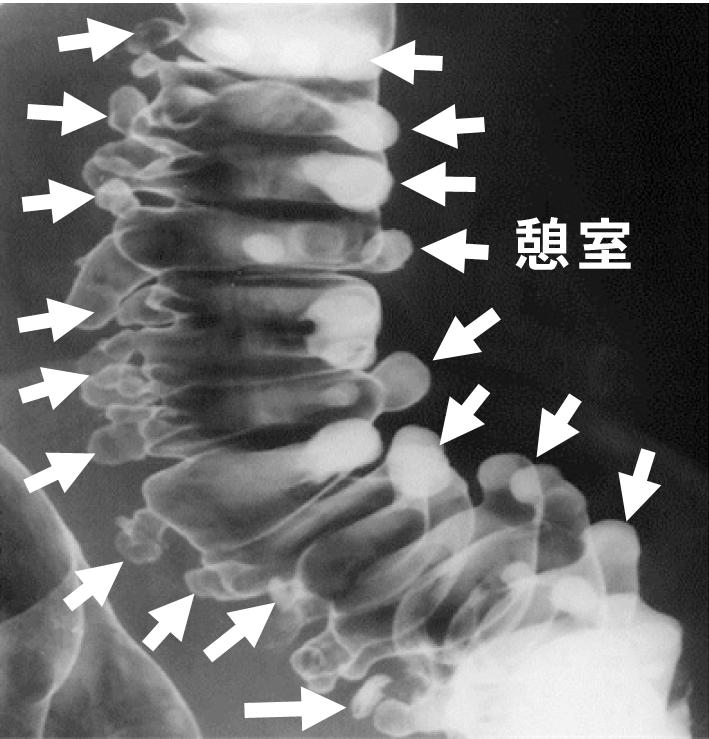 再発 炎 大腸 憩室