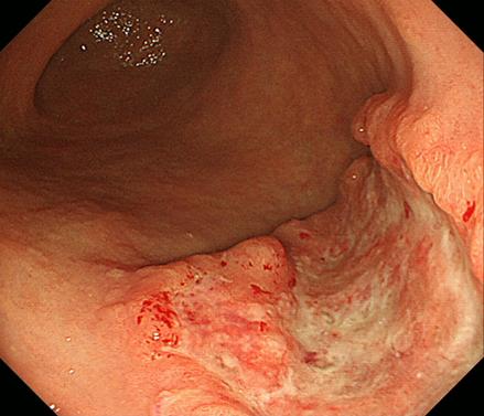 進行 性 胃がん