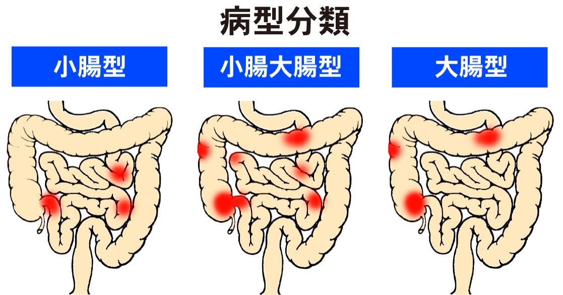 クローン 病 と は クローン病について - 慶應義塾大学病院IBD(炎症性腸疾患)センター